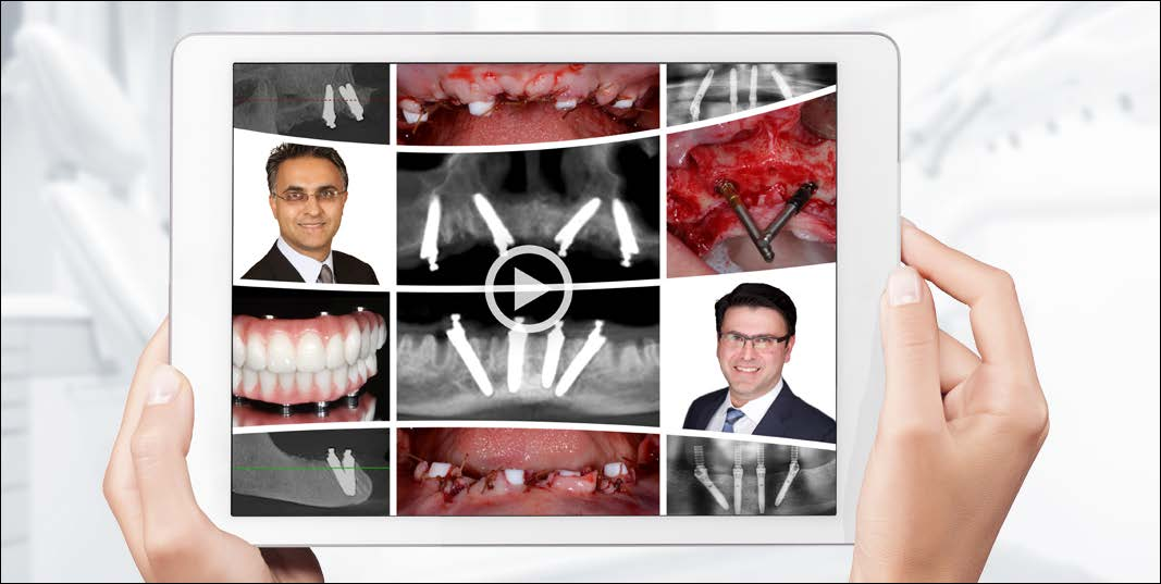 GMT 51561_All-on-4_Webinar_Edentulous_Solutions_banner_640x322px_D01_B