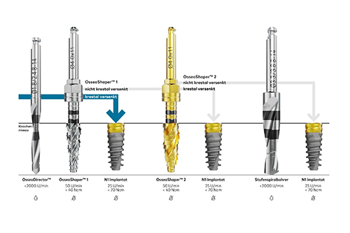 Präparation des Implantatbetts