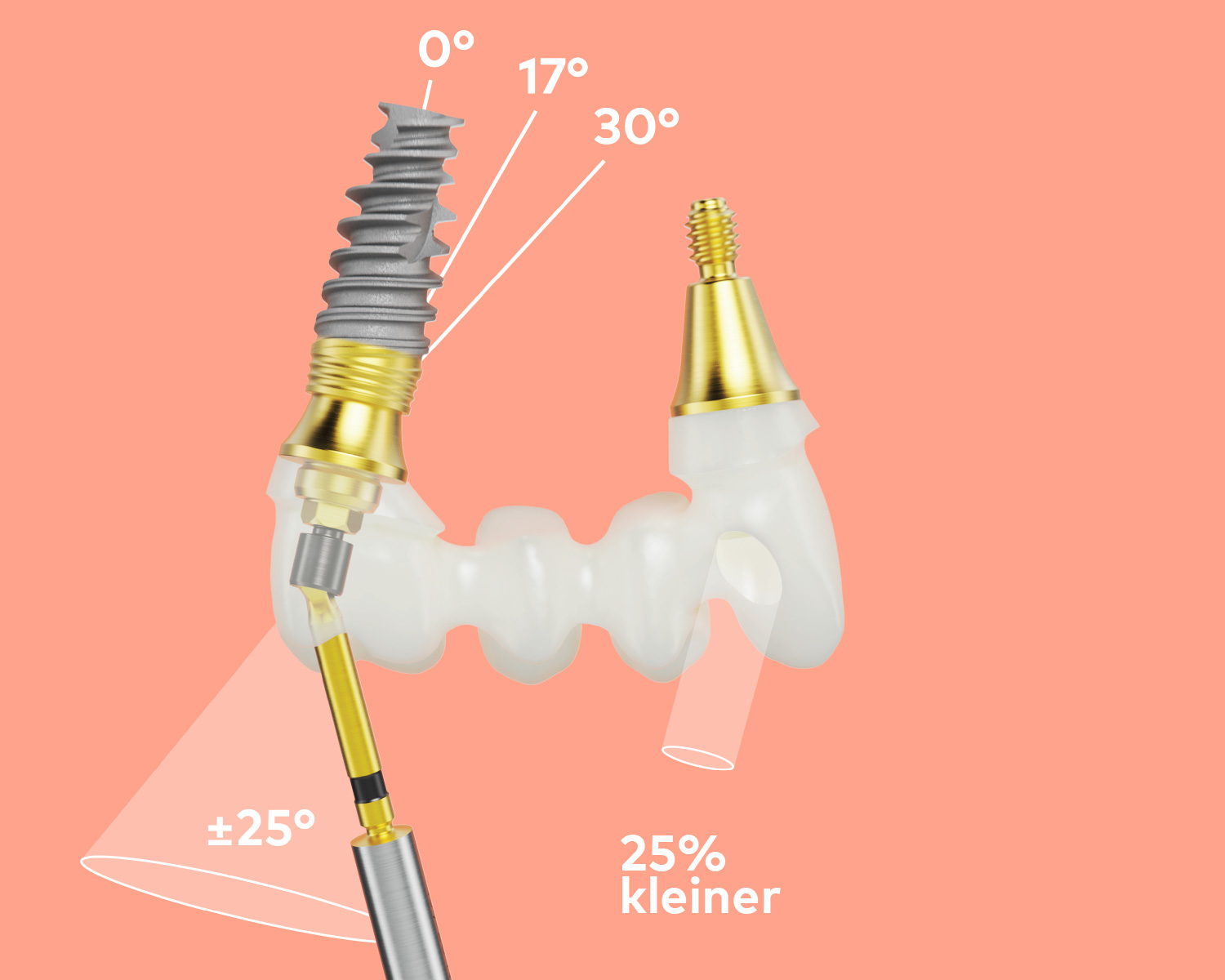 NobelProcera-zirconia-implant-bridge-features-DE